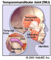 Headache Neck And Back Pain Are Symptoms Of Grinding